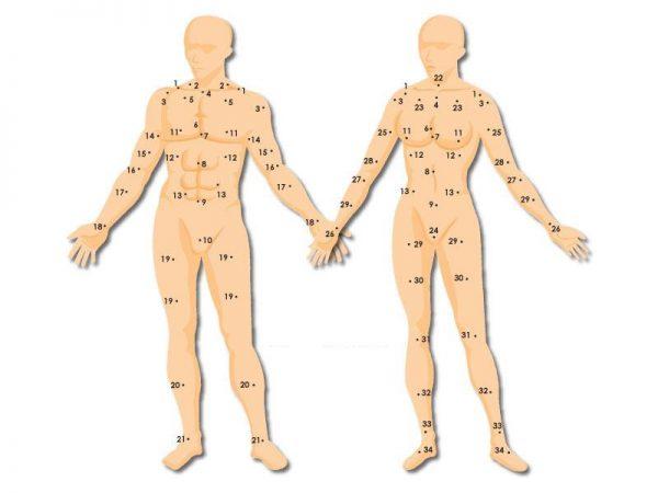 moles on body